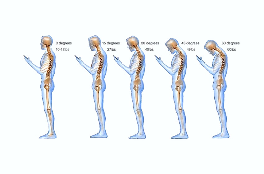 neck pain while using phone