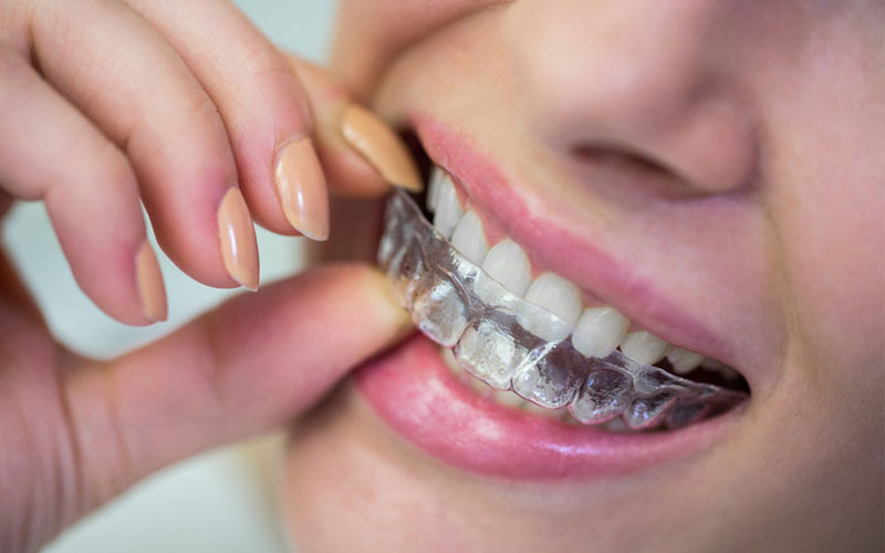 Orthodontic Treatment Advances